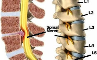 Sciatica nerve or Arq un Nisa Causes, Symptoms and Treatments