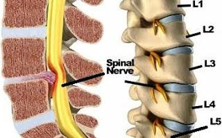 Sciatica nerve or Arq un Nisa Causes, Symptoms and Treatments