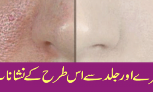 How To Remve Pores from face and skin With Natural Ingredient! Must Share