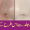 How To Remove Pores from face and skin With Natural Ingredient