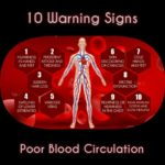 Tension, Pain and Cramping Results of Poor Blood Circulation a Disease